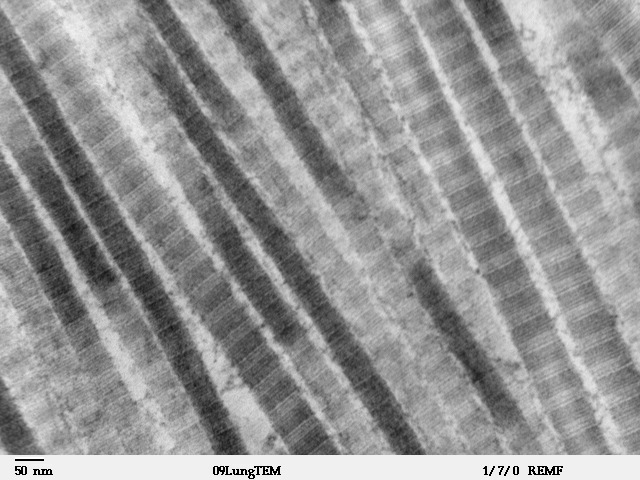 http://nanoworld88.narod.ru/data/278_files/Fibers_of_Collagen_Type_I_-_TEM.jpg